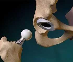 Первинне ендопротезування при через- та міжвертельних переломах стегнової кістки у хворих похилого та старечого віку