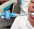 Влияние торакальной эпидуральной аналгезии на переносимость энтерального зондового питания  после гастроинтестинальных операций