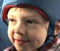 Разрушительные и труднокурабельные формы эпилепсии и эпилептические энцефалопатии у детей