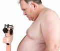 Ксеникал в лечении ожирения: современный взгляд на проблему