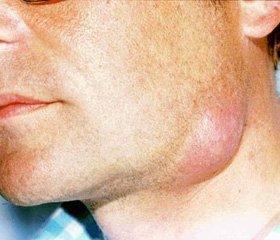 Кір і флегмона шиї мікст інфекція