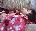 Динамика заболеваемости эпилепсией и эпилептическими синдромами  у младенцев и детей в Автономной Республике Крым за 5 лет (2007–2011 гг.)
