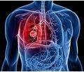 Влияние селена на функцию щитовидной железыиэффективность химиотерапии у больных туберкулезом с сопутствующим сахарным диабетом и аутоиммунным тиреоидитом
