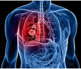 Effect of sodium selenite on thyroid gland functioning and efficacy of chemotherapy in tuberculosis patients with a concomitant diabetes mellitus and autoimmune thyroiditis