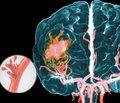 Механизм и закономерности развития инфекционных и воспалительных вирусных осложнений при геморрагическом инсульте