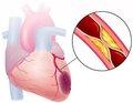 Нейрогуморальний вплив артеріальної гіпертензії на гострий інфаркт міокарда — патогенетичні взаємодії ремоделювання серця