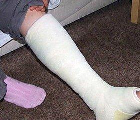 Сучасні аспекти остеосинтезу множинних переломів кісток кінцівок