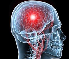 Эффективность лечения мозгового инсульта в остром периоде