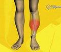 Чрескостный остеосинтез при лечении нестабильных диафизарных повреждений костей голени