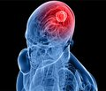 Физиотерапевтические методы в восстановительном лечении больных  с глиальными опухолями головного мозга