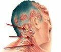 Серотонин при головных болях напряжения
