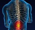 Захворювання суміжних рухових сегментів після спондилодезу: фактори ризику