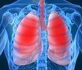 Вопросы ранней диагностики хронического обструктивного заболевания легких