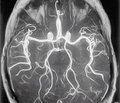 Мультимодальный подход в лечении хронической ишемии мозга