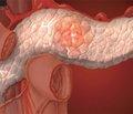 Ферментная терапия хронического панкреатита с внешнесекреторной недостаточностью поджелудочной железы