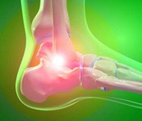 Вторичная профилактика переломов костей на фоне остеопороза