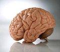 Клініко-параклінічна характеристика тапрогнозування наслідку гострого періоду мозкового ішемічного супратенторіального інсульту за наявності стресової гіперглікемії безцукрового діабету