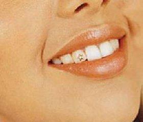 Справиться с пародонтитом поможет татуирование зубов