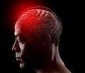 Взаимосвязь между наличием метаболического синдрома и наличием спонтанного внутричерепного кровоизлияния