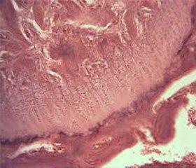 Зміни фагоцитарної ланки імунітету В щурів, що зазнали дозованої опікової травми таподальшого впливу поляризованого світла