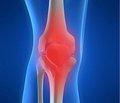 Патологічна ламкість кісток: медикаментозна корекція стану кісткової тканини та хірургічна корекція деформацій кісток