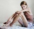 Индекс массы тела у 1,2 млн подростков и риск терминальной хронической почечной недостаточности