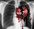 Личностные особенности,  повышающие риск развития инфаркта миокарда