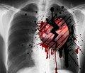 Догоспитальная тромболитическая  терапия тенектеплазой у пациентов  с инфарктом миокарда