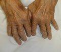 Сурфактантное состояние синовиальной жидкости у больных ревматоидным гонитом