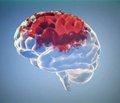 Возможности лечения когнитивных и эмоциональных нарушений в остром периоде инфаркта мозга