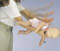 Инородные тела гортани и трахеи у детей