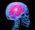 Поздние осложнения мозгового инсульта