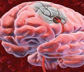 Острый ишемический инсульт:  сравнительная эффективность цитиколинов