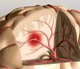 Олмесартан в лечении больных  ишемическим инсультом
