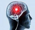 Лечение и профилактика когнитивных нарушений  у пациентов с хроническим нарушением мозгового кровообращения