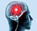Вплив кортизолу на перебіг відновного періоду інфаркту головного мозку