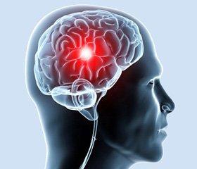 Діагностика та лікування хронічної ішемії головного мозку