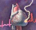 Особенности течения ишемической болезни сердца и прогноз больных, перенесших стентирование коронарных артерий