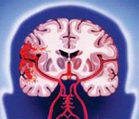 Применение нейропротекторов методом  экстракорпоральной фармакотерапии  в остром периоде ишемического инсульта