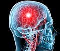 Нейропротекция мексидолом и комплексом L-аминокислот и полипептидов в составе базисной терапии больных с инфарктами мозга в вертебробазилярном бассейне