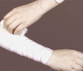 Исследование качества жизни пациентов по системе EuroQol-5D-5L после хирургического лечения обширных механических ран конечностей с дефектом кожных покровов