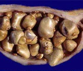 Вплив ендокринних порушень на результати хірургічного   лікування пацієнтів похилого і старечого віку із жовчнокам'яною хворобою