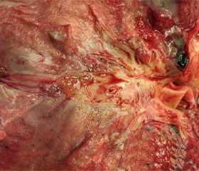 Патогенез синдрома посттравматической жировой эмболии