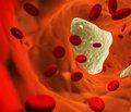 Выявлены клетки, ответственные за кальцификацию артерий