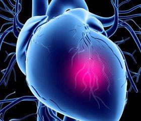 Современные позиции индапамида SR 1,5 мг в лечении артериальной гипертензии