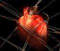 Око як провісник кардіоваскулярної патології у хворих на цукровий діабет (Патогенетичний аспект та клінічна реалізація)