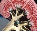 Роль Кардосалу в лікуванні артеріальної гіпертензії  у пацієнтів з хронічною хворобою нирок