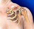 Роль клинически ориентированной классификации в определении тактики лечения переломов ключицы