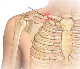 Диагностика и лечение сочетанных повреждений грудной клетки и конечностей