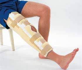 Хирургическое лечение околосуставных переломов длинных костей, образующих коленный сустав
